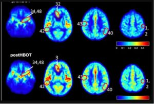 Study results show elevated blood flow and improved oxygenation in the brain of patients suffering from cognitive impairment (photo credit: Aging/Uri Ashery)